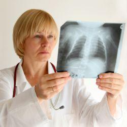 Туберкулез симптомы