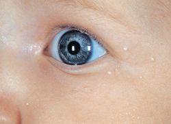Уплотнение под кожей у ребенка