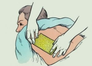 Как правильно ставить стоп-лосс