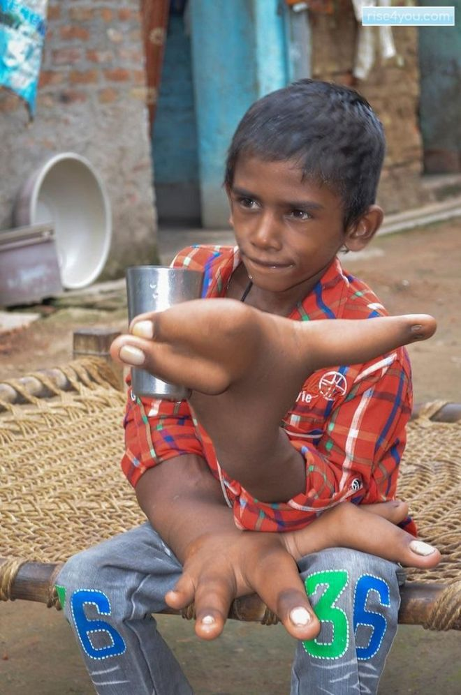 «Дитя дьявола» из Индии — мальчик с огромными руками