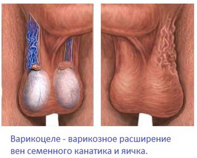 Секс и варикоцеле 2 степени