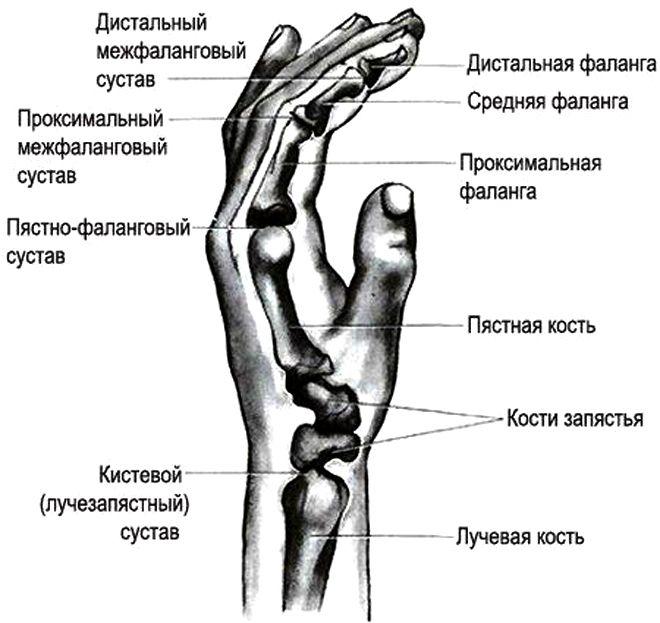 Артрит запястья кисти руки причины симптомы и методы лечения
