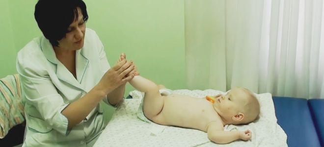 Дисплазия тазобедренного сустава у детей до года
