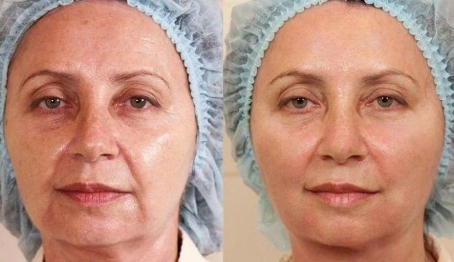 Подтяжка лица сразу после операции