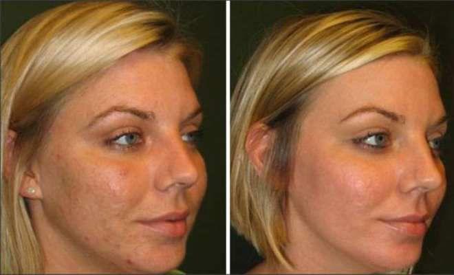алмазная микродермабразия фото до и после