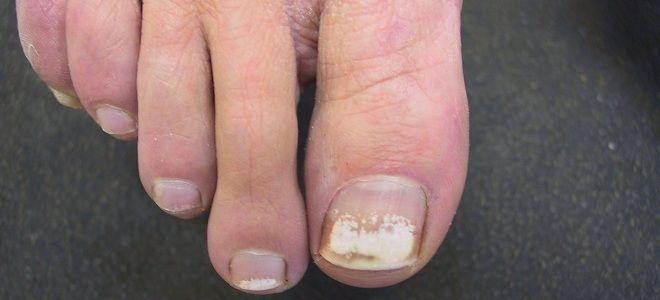 Белые полосы на ногтях ног.