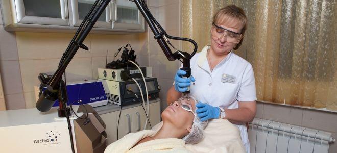 применение лазера для удаления шрама
