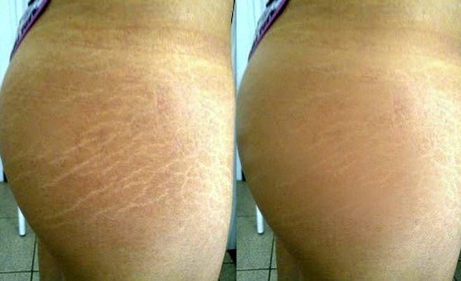 как происходит лазерная шлифовка шрамов