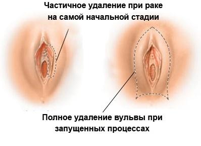 Картинки половые губы клиторы всех размеров фото 95-343