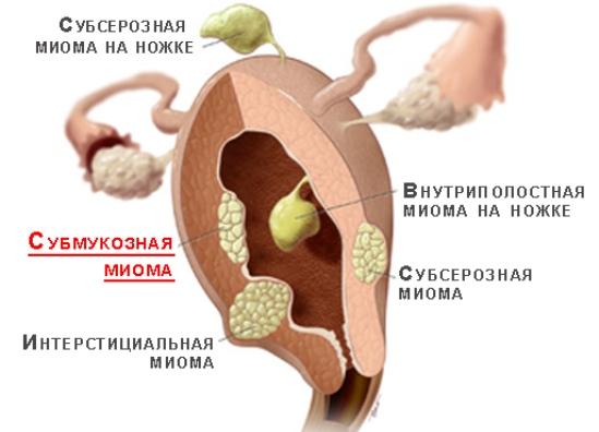 Удаление миомы матки в Москве