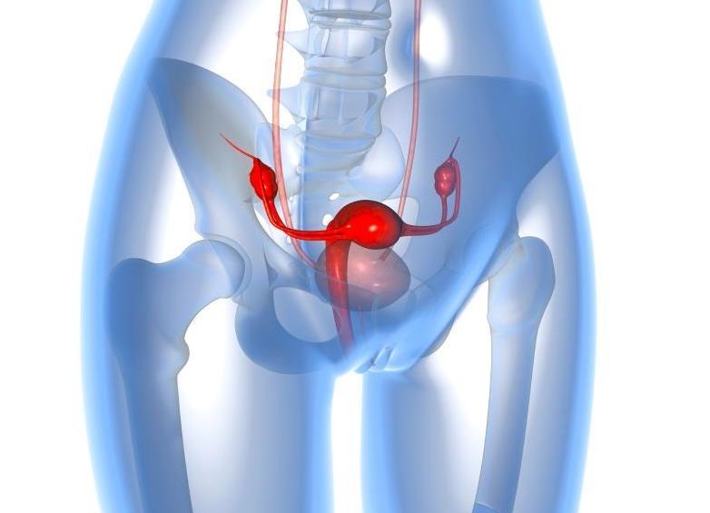 Кистома правого яичника что это такое и как лечить