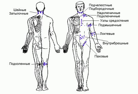 Лимфоузлы схема расположения на теле человека.