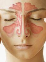 Фронтит - симптомы, лечение
