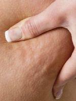 Как бороться с целлюлитом?
