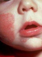 Нейродермит у детей
