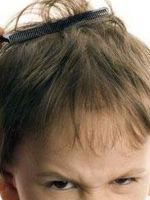 Педикулез у детей - лечение