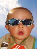 Тепловой удар у ребенка - лечение