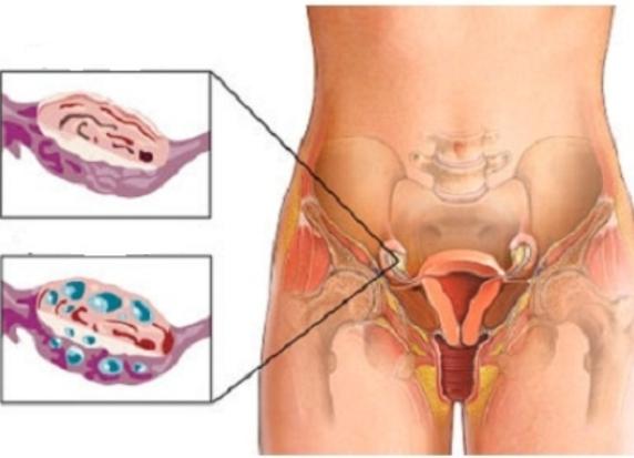 как снять воспаление яичника у женщин