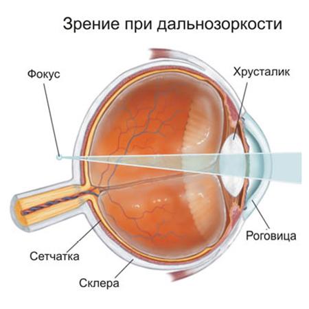 Упражнения для зрения при дальнозоркости видео