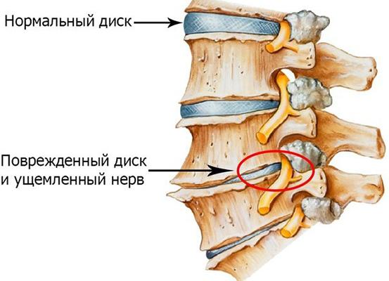 Остеохондроз в области лопатки лечение