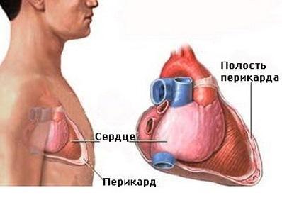 Перикардит – симптомы