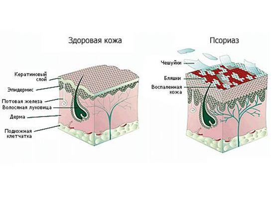 Псориаз — причины, симптомы и лечение, фото