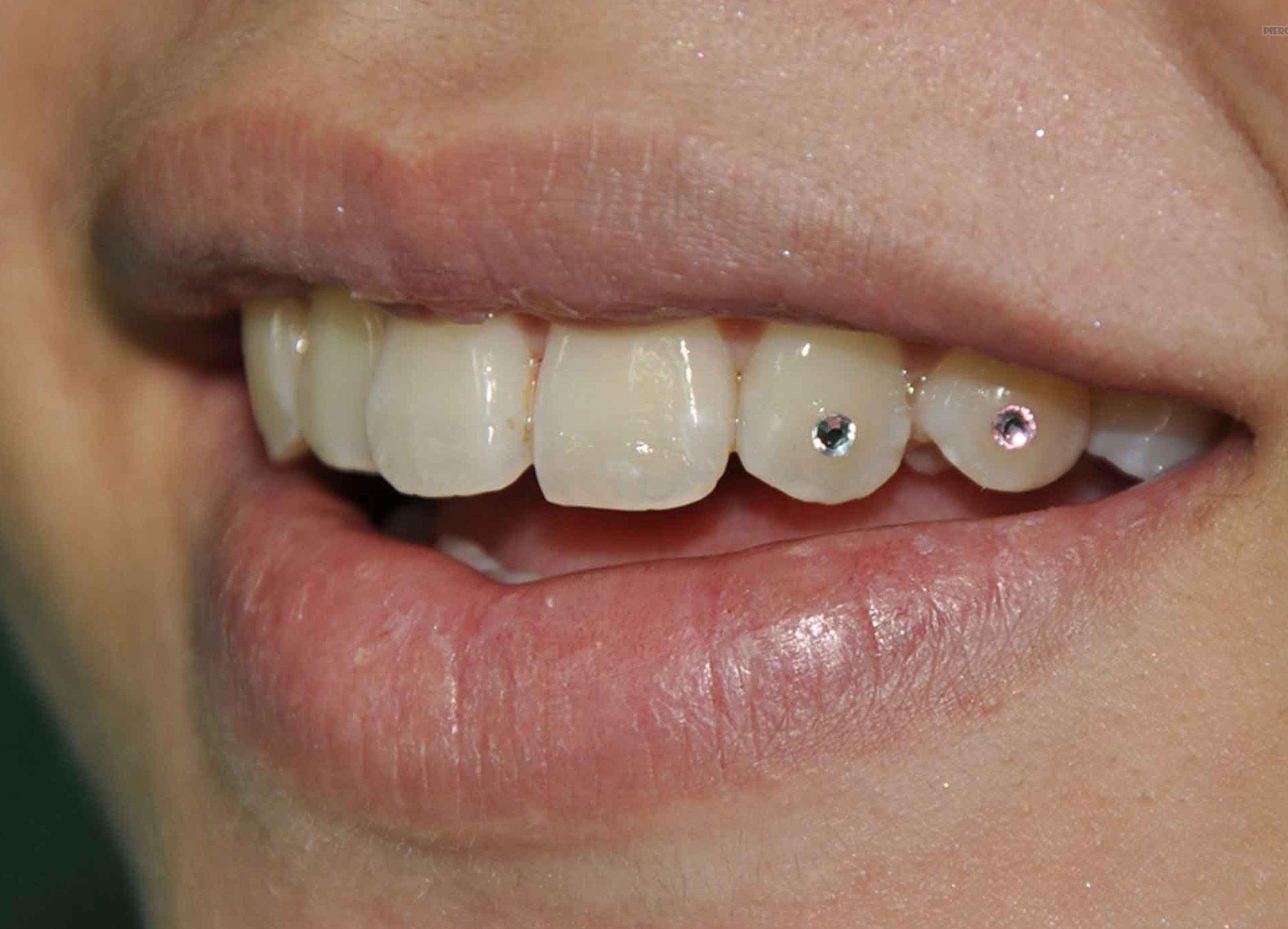 арсенале стразы на зубах фото северодвинский центральный