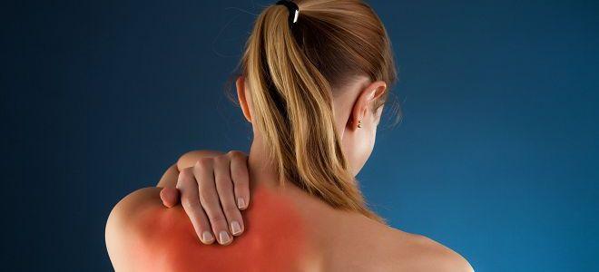 Препараты для лечения бурсита тазобедренного сустава дисплазия тазобедренных суставов на снимках