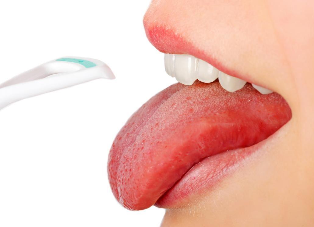 Стоматит на языке - лечение у взрослых и методы профилактики