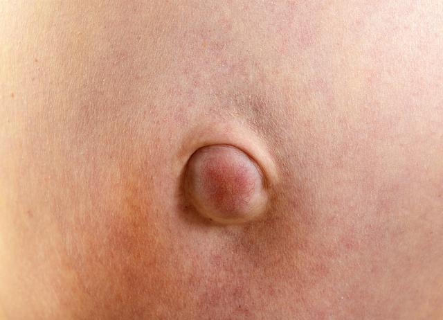 Можно ли вылечить пупочную грыжу без операции у взрослых