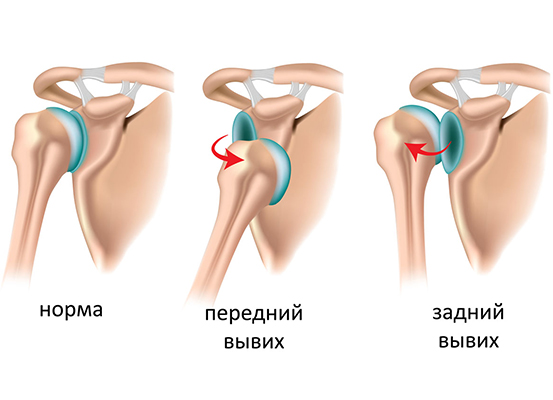 Вывих плечевого сустава реабилитация многосуставные мышцы пример