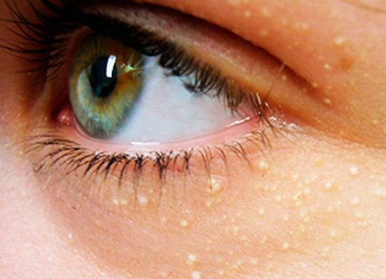 Жировик в уголке глаза