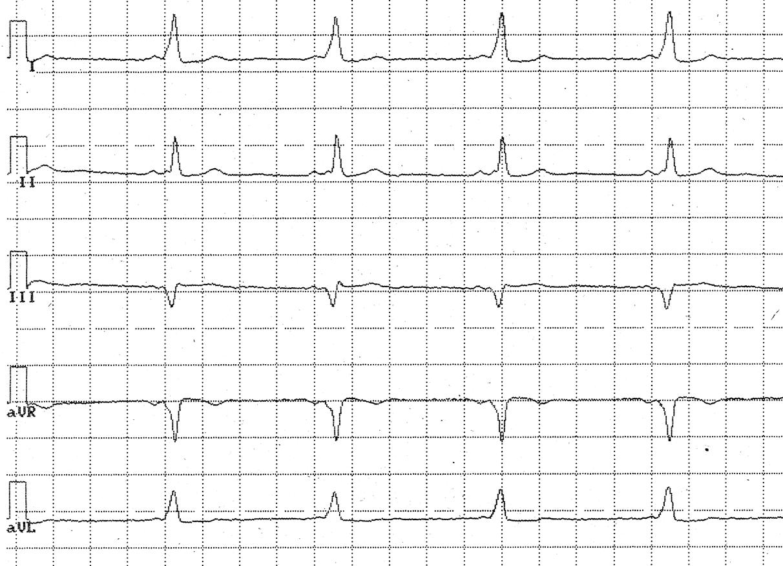 Нарушение внутрижелудочковой проводимости сердца – что это такое?
