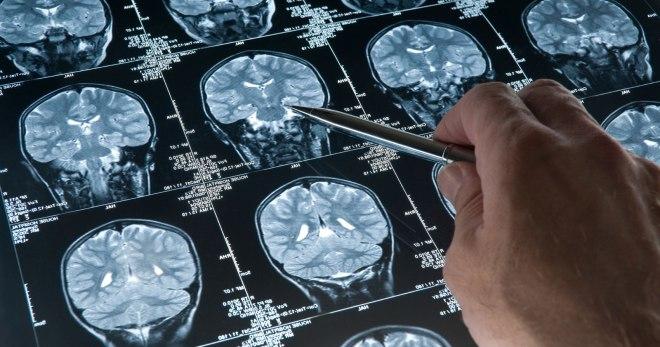 Доброкачественная опухоль головного мозга, рак мозга – признаки ... a92719eadb1