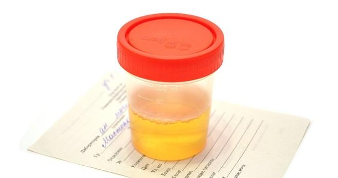 Лейкоциты в моче повышены – причины у женщин, что это значит? Повышены лейкоциты в моче при беременности – причины