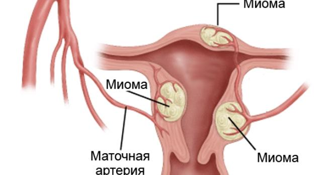 Миома матки чем опасна операция