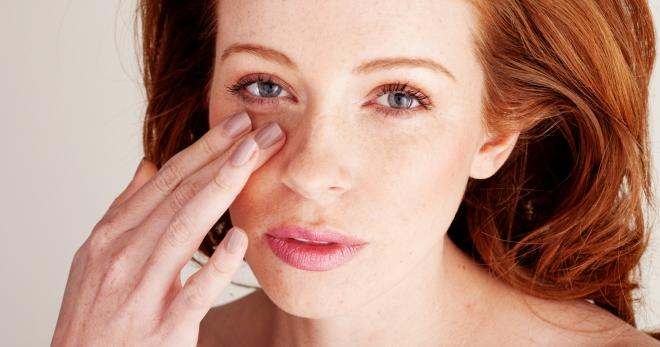 Отеки под глазами – как устранить безобидные причины и когда нужно к врачу?