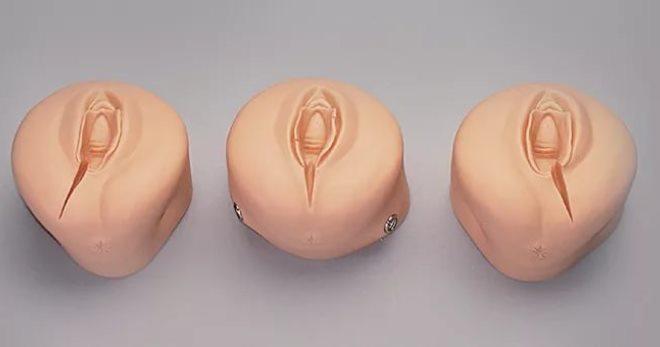 фото разрывов при родах.