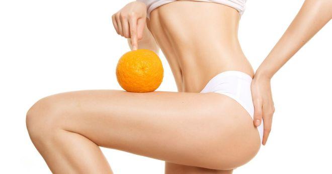 Антицеллюлитные обертывания - виды и эффективность борьбы с лишним весом