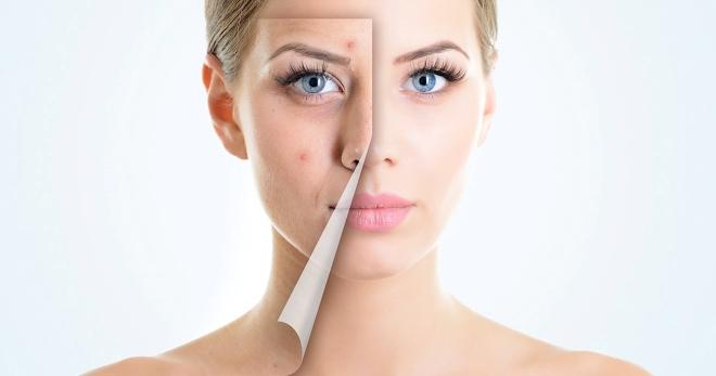 Угревая сыпь – как быстро и эффективно вылечить кожу?