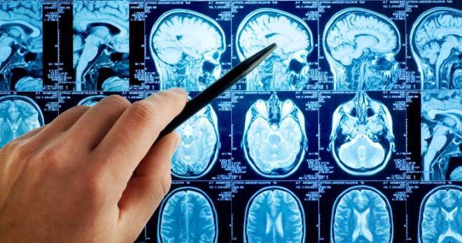 Причины, симптомы, лечение и последствия отека головного мозга