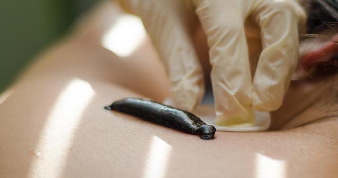 Гирудотерапия при боли в суставах ортез коленного сустава нижний нрвгород