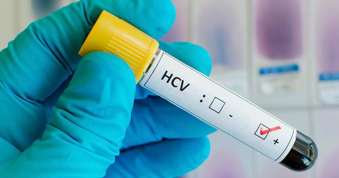 Лечение гепатита С – лучшие лекарства, народные средства и диета