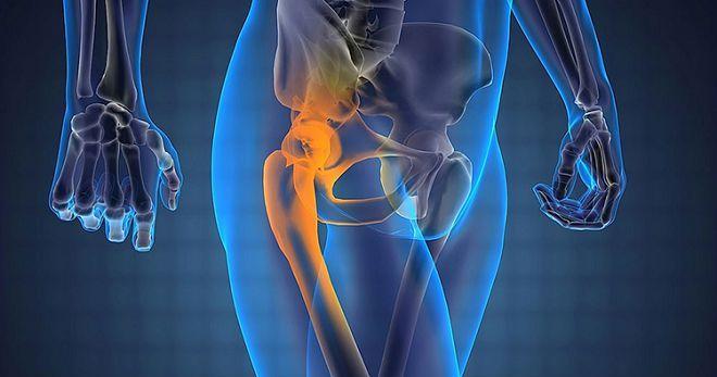 При болях в тазобедренном суставе лечение производитель лопат коленных суставов