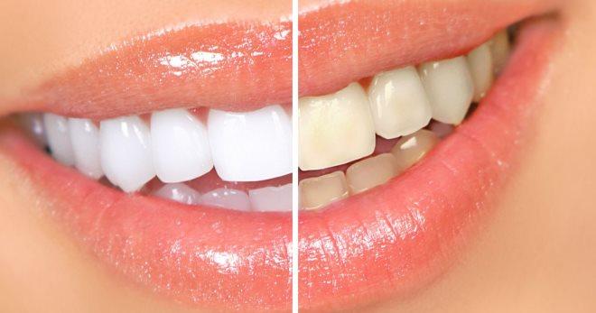 Пигментация зубов лечение в домашних условиях 404