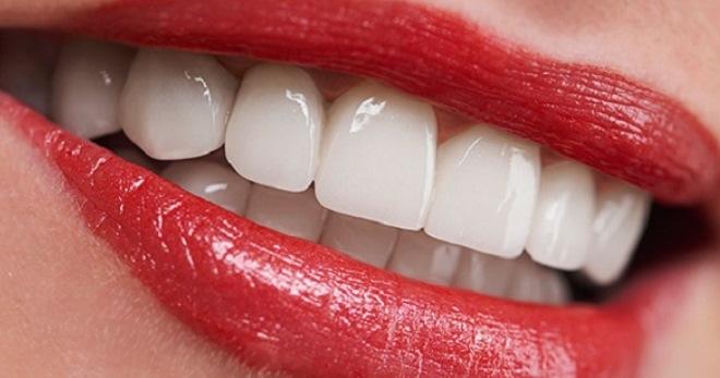 Имплантация зубов в Днепре