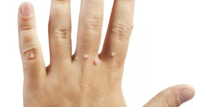 Verrues sur les mains - causes et traitement de la pharmacie et des remèdes populaires