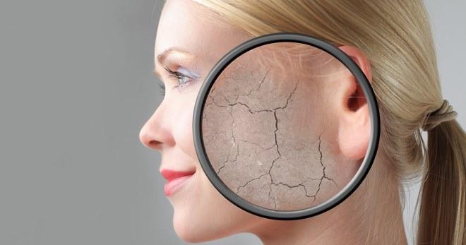 Маска для сухой кожи лица – 5 лучших рецептов