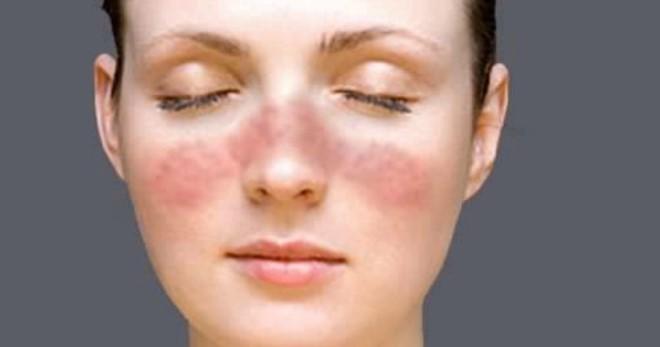 Народное лечение экземы на лице