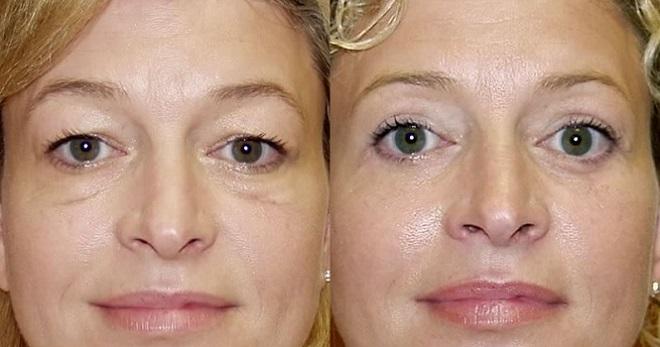 Уход за лицом: упругость кожи